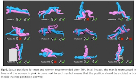 hip-positions-chart