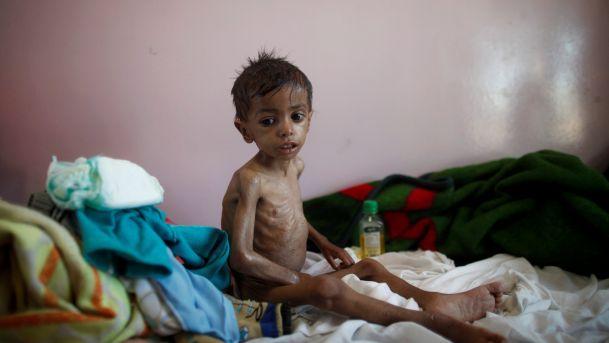 Yemen conflict: UN official warns of world's biggest famine