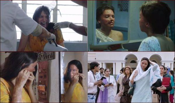 Chhapaak Trailer: Deepika