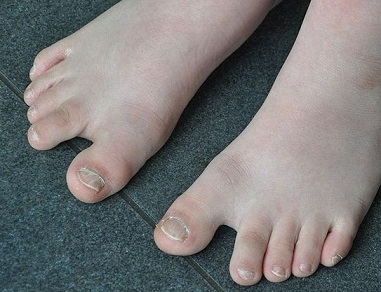 downs syndrom toe