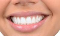 straight-teeth-_indianbureaucracy