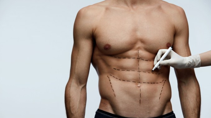 With abdominal etching, plastic surgeons help patients get 'six-pack abs'