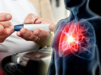 Pollution and winter linked with rise in heart attack treatment