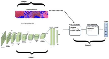IASST Develops AI based computer diagnosis framework for rapid & accurate diagnosis of oral cancers