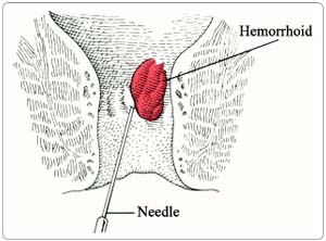 Surgery Hemorrhoid Injection IndiaBest Price Surgery