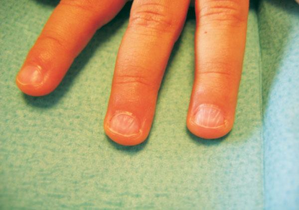 Hands of Children: Fingernail Disorders in Childhood! 1/2 ...