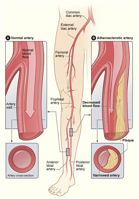 India Surgery Peripheral Vascular Surgery, India Surgery Peripheral Vascular Surgery, Peripheral, India Peripheral Vascular