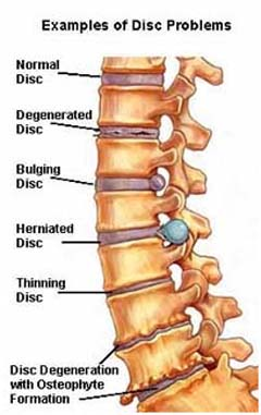 Spinal Disorders India, Spine Conditions India, Lamintomy Surgery India