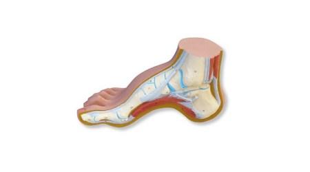Hollow foot