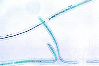 Scytonema, trichomes with false branchings w.m.