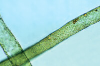 Vaucheria sessilis, showing sexual stages w.m.
