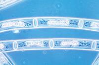 Mougeotia, a filamentous alga with flat chloroplasts w.m.