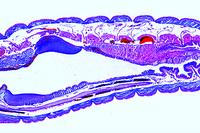 Lumbricus, 16th - 23rd segment, sagittal l.s., crop and gizzard