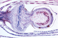 Sphagnum, l.s. of young sporophyte