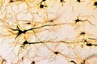 Cerebral cortex, human, t.s. silvered