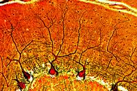 Cerebellum, human, t.s. silvered