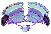 Head and eyes, t.s. of Cloeon or Baetis, May fly