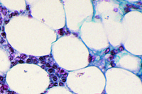 Adipose tissue, section fat removed to show the cells