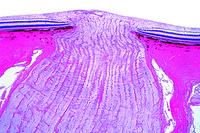 Entrance of optic nerve into the retina, sag.sec.