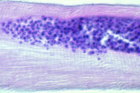 Trypanosoma cruzi, section through infected heart muscle shows Leishmania forms in tissue *