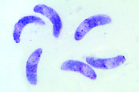 Toxoplasma gondii, causing toxoplasmosis, tissue smear with parasites