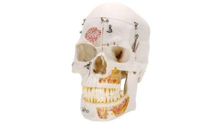 Deluxe Human Demonstration Dental Skull Model, 10 part