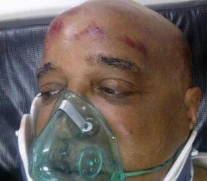 The injured Ron Robinson receiving treatment at the Georgetown Public Hospital.