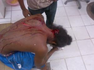 One of the injured occupants of the car awaiting medical treatment at the Georgetown Public Hospital. [iNews' Photo]