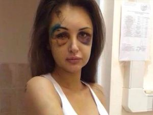 A multimillionaire Russian telecommunications boss has gone on the run after beating his model girlfriend up so badly when she told him that she wanted to leave him.