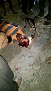 Accident victim Alim Mohamed on lying motionless on the road immediately after the accident