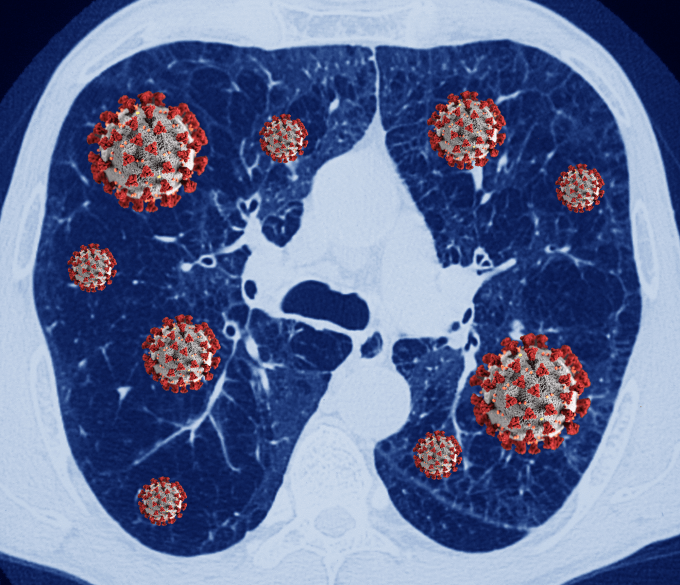 COVID-19 in Chronic Lung Disease: What You Need to Know ...
