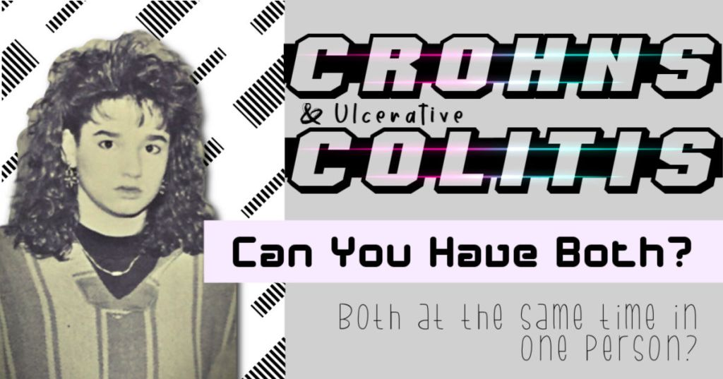 Can You Have BOTH Crohn's Disease and Ulcerative Colitis?