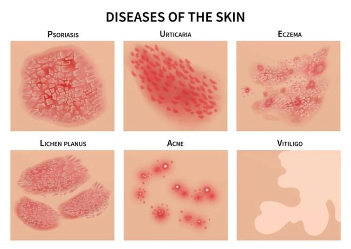 Lesiones en la piel, distintas a las psoriasis