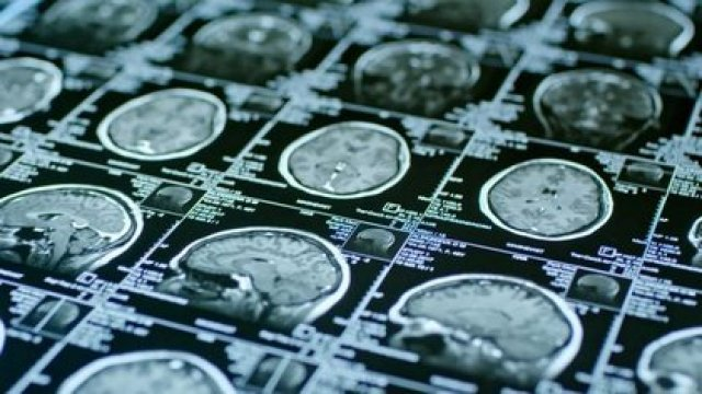 Imágenes de resonancia magnética de un cerebro (UNIVERSITY OF MISSOURI)
