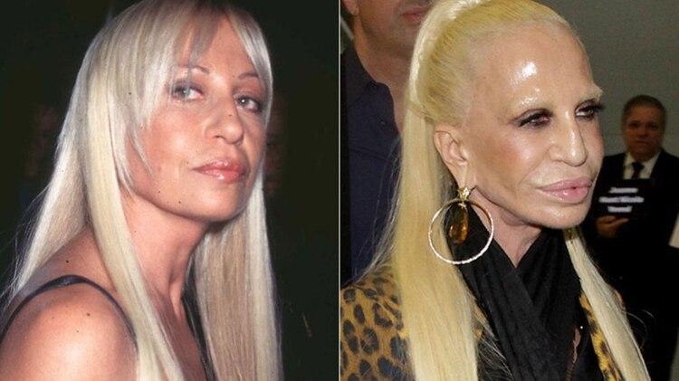 En un par de décadas, Donatella modificó su rostro de manera increíble
