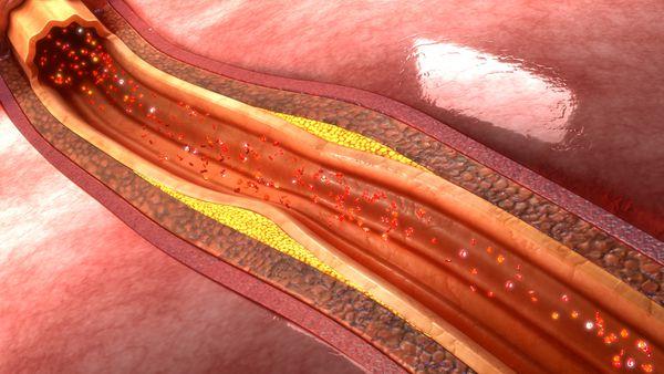 El colesterol LDL —el malo— causa la acumulación de placas que afectan la circulación. (newsroom.clevelandclinic.org)