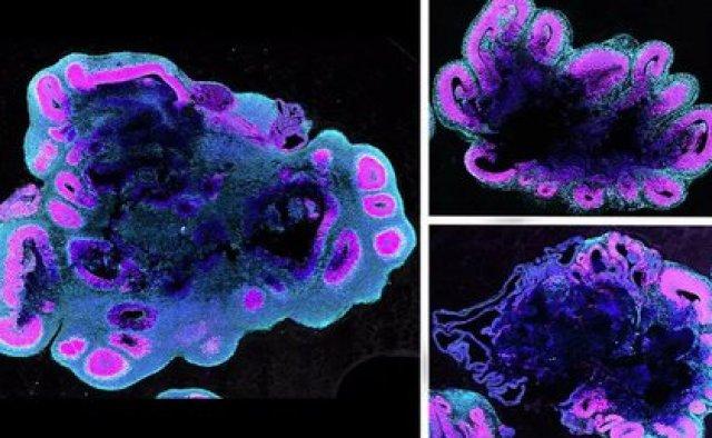 A las cinco semanas de edad, los organoides del cerebro humano (izquierda) son mucho más grandes que los de un gorila (arriba a la derecha) y un chimpancé (abajo a la derecha) (POLITICA INVESTIGACIÓN Y TECNOLOGÍAS.BENITO-KWIECINSKI/MRC LMB/CELL)