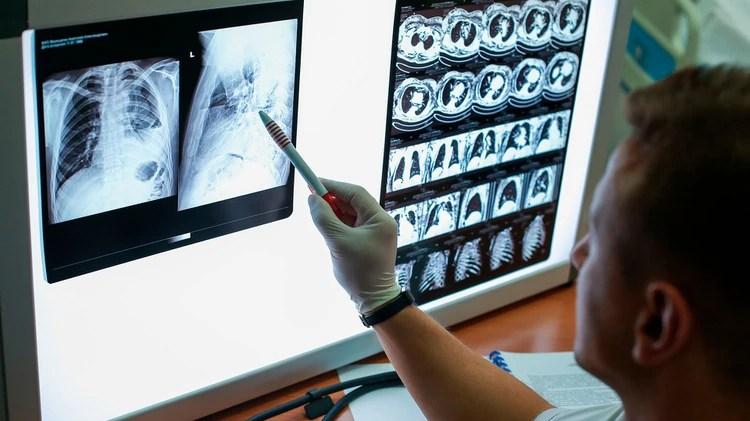 Los fumadores le restan importancia a sus síntomas como la tos intermitente ya que la interpretan como normal por el cigarrillo (Shutterstock)