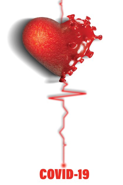 Los ataques cardíacos generalmente son causados por un bloqueo completo o casi completo de una arteria cardíaca.  (Shutterstock)