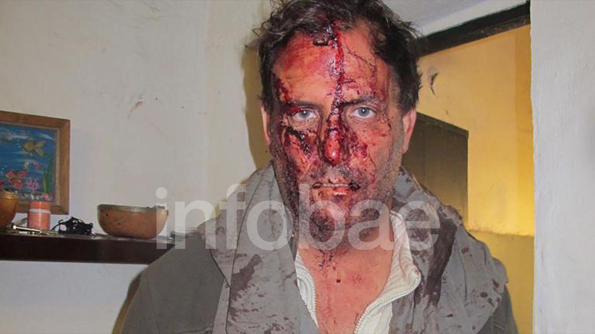 Así quedó el cuñado de Arana luego del ataque