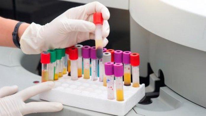 En junio de 2019, la OMS había alertado sobre el incremento de las infecciones de transmisión sexual (Shutterstock)