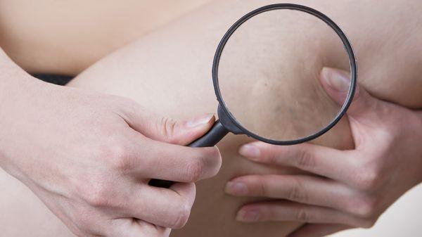 Entre otras consecuencias están la hinchazón, la aparición de celulitis y la fatiga muscular (iStock)