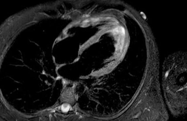Un estudio todavía inédito confirmó la presencia de miocarditis en sobrevivientes de COVID-19, incluso entre jóvenes deportistas. (Radiopaedia.org/MedPage Today)