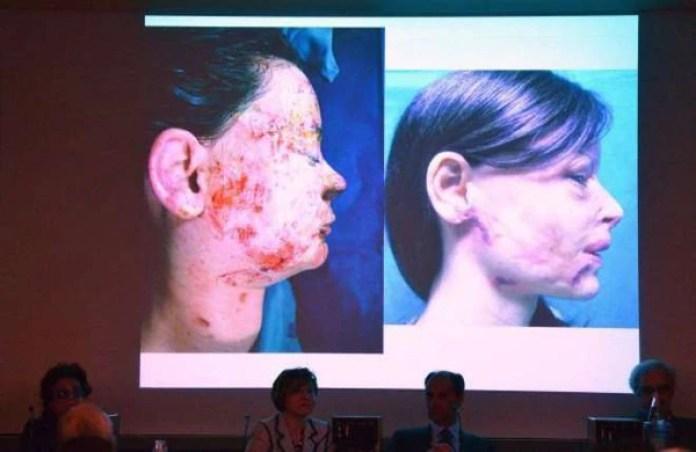 El rostro de Lucia tras el ataque y después de las primeras operaciones