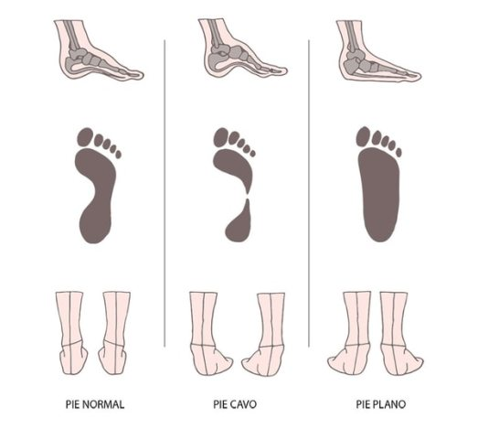 Los distintos tipos de apoyo del pie