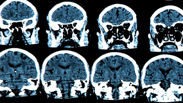 Es una enfermedad que produce un deterioro neurodegenerativo (iStock)
