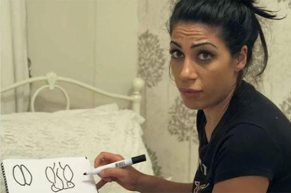 """La paciente dibujó para el programa 'BBC Three' el aspecto de una vagina """"normal"""" y la suya (BBC Three)"""