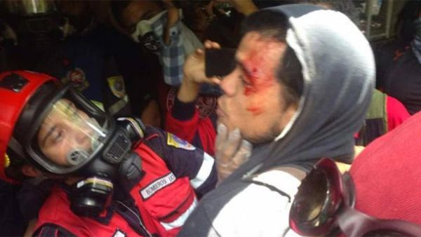 Uno de los tantos heridos por la represión