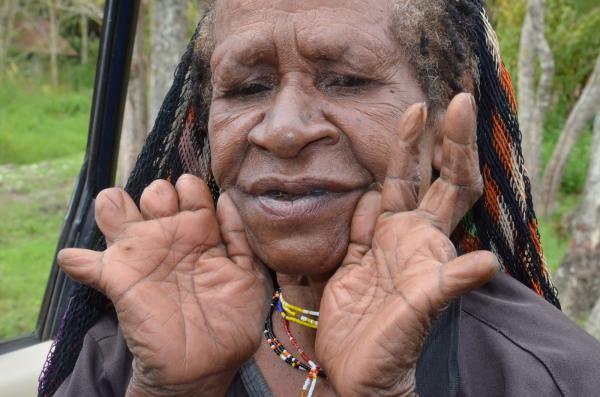 Hasil gambar untuk Ikipalin di Papua