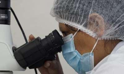detección de tuberculosis